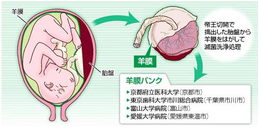 羊膜で目(角膜)の治療手術1